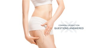 Common Liposuction Questions Answered