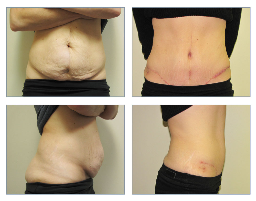 history of tummy tuck Tummy tuck surgery, also known as abdominoplasty copyright © 2018 american society of plastic surgeons | privacy policy.