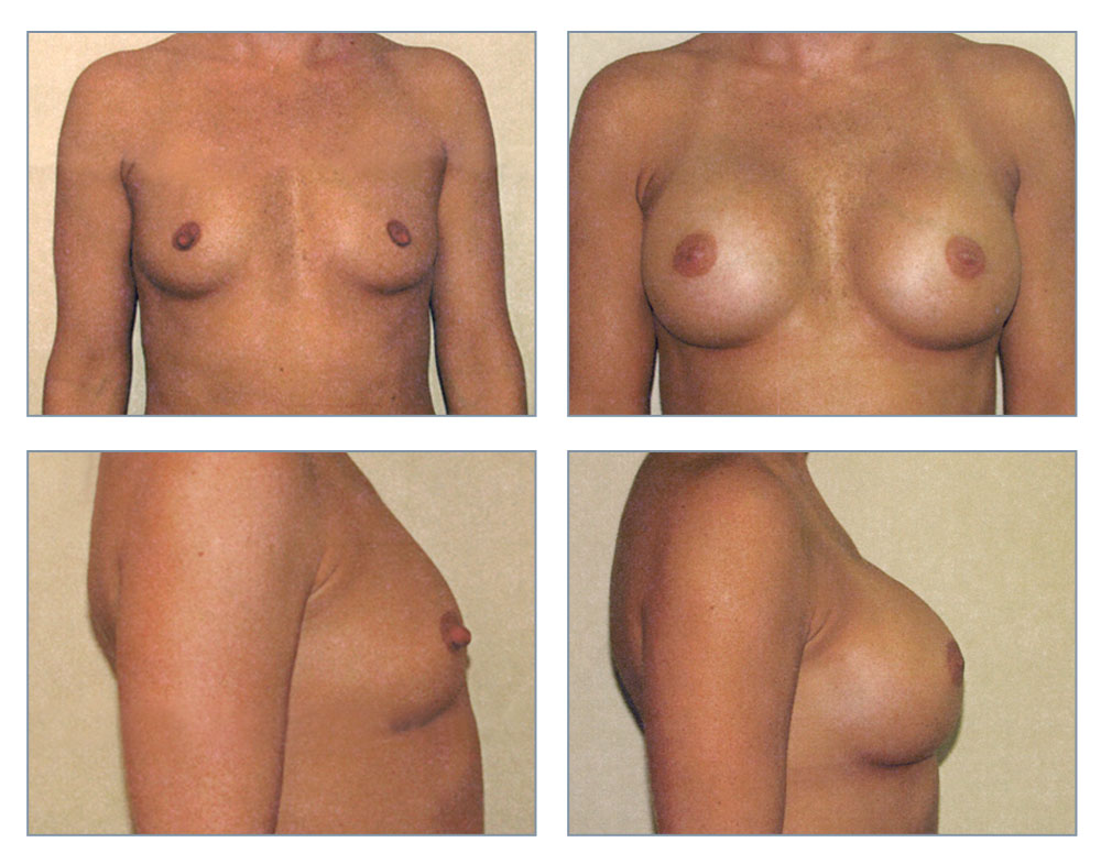 Breast pictures after implants