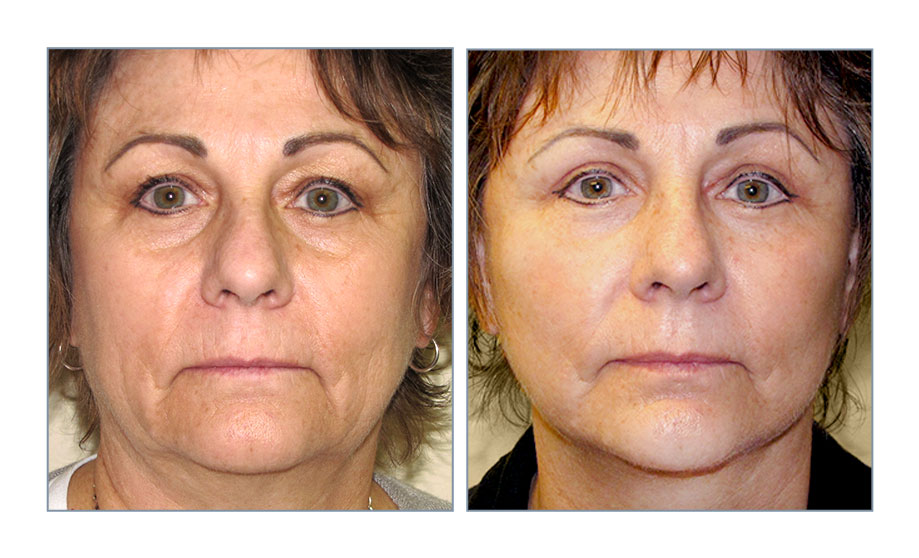Facelift Surgery | Dr. Stacy Peterson MD | Wichita, KS