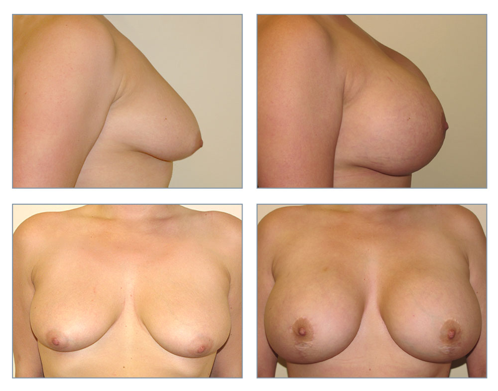 Shaking, support. Breast reconstruction surgeon think