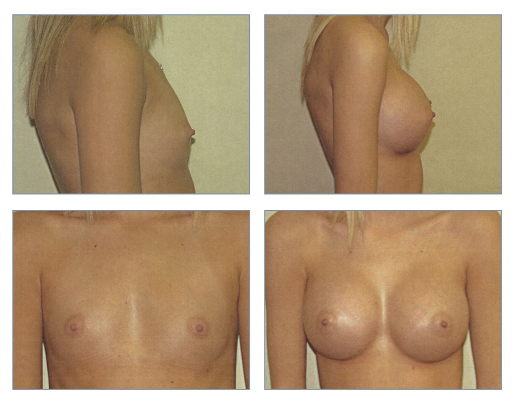 Opinion strip breast implants mine