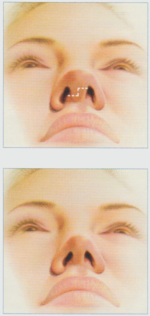 rhinoplasty-stacy-peterson-md