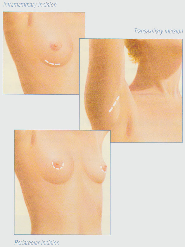 stacy-peterson-breast-augmentation-incisions