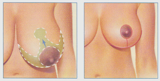 stacy-peterson-breast-reduction-anchor-shaped-incision