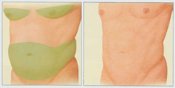 stacy-peterson-liposuction-front