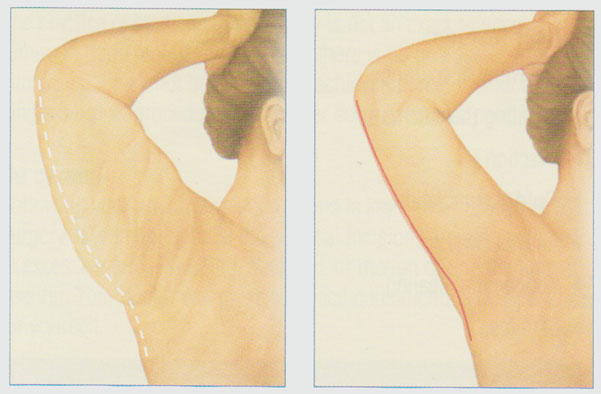 stacy-peterson-md-arm-lift-back-arm-incision