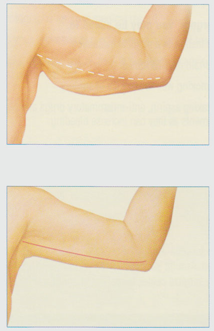 stacy-peterson-md-arm-lift-inner-arm-incision
