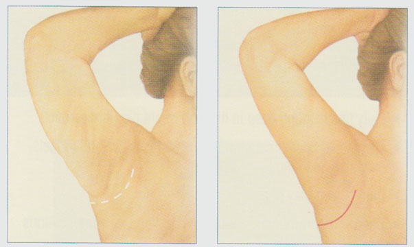 stacy-peterson-md-arm-lift-minimal-arm-incision