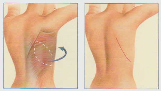stacy-peterson-md-breast-reconstruction-latissimus-dorsi-flap