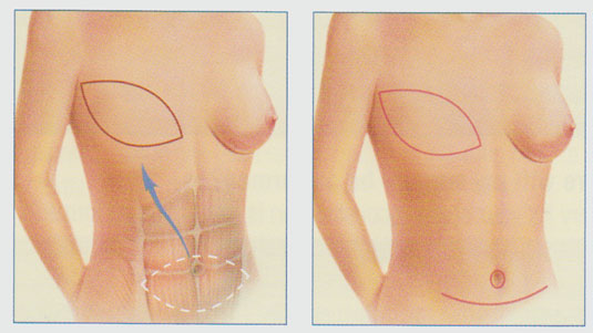 stacy-peterson-md-breast-reconstruction-tram-flap