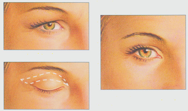 stacy-peterson-plastic-surgery-eyelid-procedure-incision
