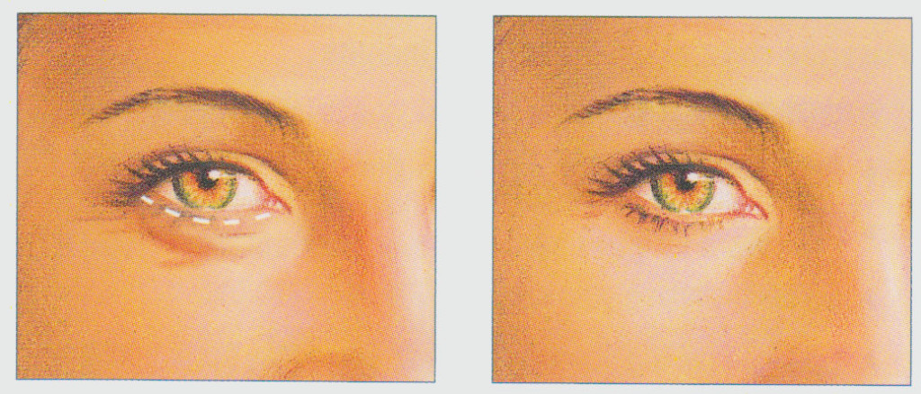 stacy-peterson-plastic-surgery-eyelid-procedure-transconjunctival-incision