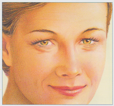 stacy-peterson-plastic-surgery-eyelid-procedure