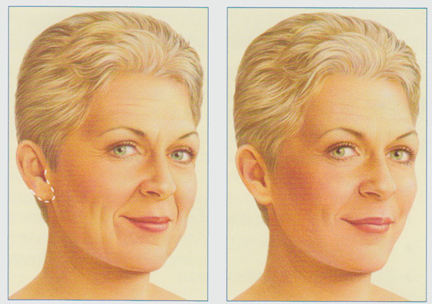 stacy-peterson-plastic-surgery-limited-incision-facelift