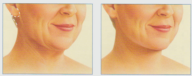 stacy-peterson-plastic-surgery-neck-lift-facelift