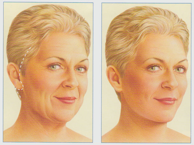 stacy-peterson-plastic-surgery-traditional-facelift