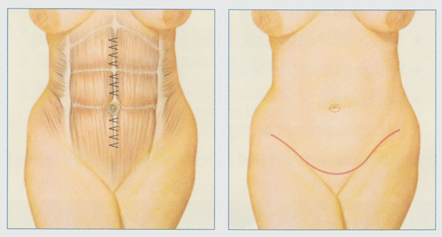 stacy-peterson-tummy-tuck-procedure-wichita-ks