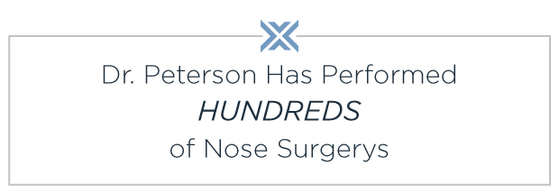 Wichita plastic surgeon specializing in nose surgery