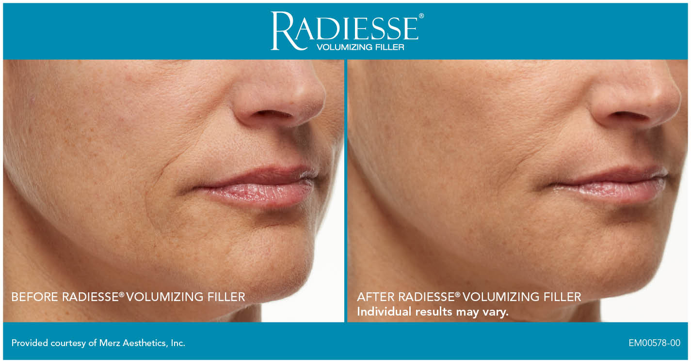 Stacy Peterson   Cosmetic Injectables   Wichita, KS