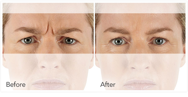 Stacy Peterson | Cosmetic Injectables | Wichita, KS