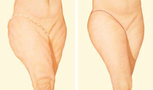 outer-thigh-lift-incision